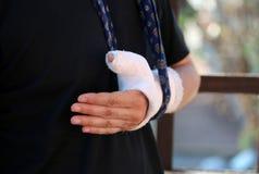 Πρόσωπο με το βραχίονα γύρω από το λαιμό του λόγω του σπασμένου χεριού με χυτός στοκ φωτογραφία με δικαίωμα ελεύθερης χρήσης