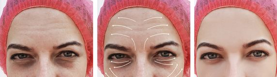 Πρόσωπο ρυτίδων γυναικών πριν και μετά από cosmetology διαφοράς επίδρασης τη διόρθωση θεραπείας, βέλος στοκ φωτογραφίες με δικαίωμα ελεύθερης χρήσης