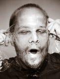 Πρόσωπο Deformated Στοκ Εικόνες