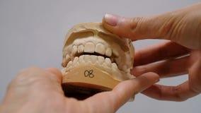 Πρότυπο γύψου των δοντιών πρίν εγκαθιστά το σύστημα υποστηριγμάτων Ανοικτός αστείος σαγονιών και κλείνει στα χέρια ενός γιατρού, απόθεμα βίντεο
