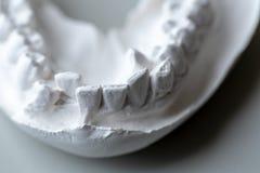Πρότυπο δοντιών για την εκπαίδευση στο εργαστήριο στοκ φωτογραφίες
