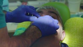 Πρότυπο δοντιών που δημιουργεί στο οδοντικό προσθετικό κέντρο Χυτός των δοντιών απόθεμα βίντεο