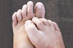Πόδι και βακτηρίδια Στοκ Φωτογραφία