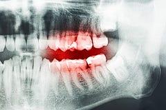 Πόνος δοντιών στην ακτίνα X Στοκ Φωτογραφία