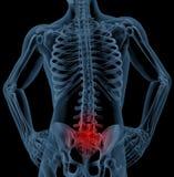 πόνος στην πλάτη Στοκ Εικόνα