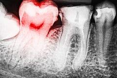 Πόνος της αποσύνθεσης δοντιών στην ακτίνα X στοκ φωτογραφία με δικαίωμα ελεύθερης χρήσης