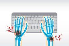 Πόνος χεριών από το πληκτρολόγιο χρήσης Στοκ Φωτογραφίες