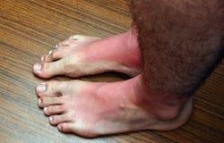 Πόδια ηλιακού εγκαύματος Στοκ Εικόνες
