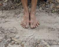 Πόδια μιας ηλικιωμένης γυναίκας Στοκ Εικόνες