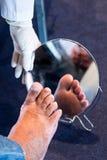 Πόδι διαβήτη στοκ εικόνες με δικαίωμα ελεύθερης χρήσης