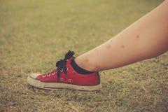 Πόδι της γυναίκας με τα δαγκώματα κουνουπιών στοκ εικόνες