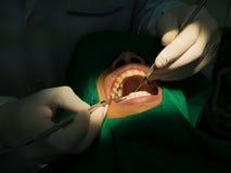 Πλήρωση οδοντιάτρων Στοκ φωτογραφίες με δικαίωμα ελεύθερης χρήσης