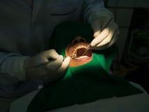 Πλήρωση οδοντιάτρων Στοκ εικόνες με δικαίωμα ελεύθερης χρήσης