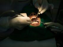 Πλήρωση οδοντιάτρων Στοκ Φωτογραφίες
