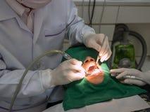Πλήρωση οδοντιάτρων Στοκ Εικόνα