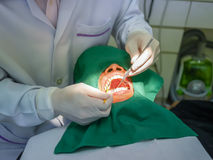 Πλήρωση οδοντιάτρων Στοκ φωτογραφία με δικαίωμα ελεύθερης χρήσης