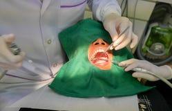 Πλήρωση οδοντιάτρων Στοκ Φωτογραφία