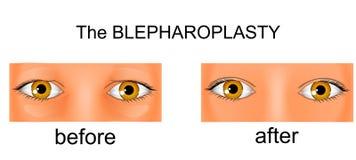 Πλαστική χειρουργική των βλέφαρων πριν και μετά από τη χειρουργική επέμβαση ανελκυστήρας απεικόνιση αποθεμάτων