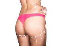 Πλαστικό ή αισθητική χειρουργική, cellulite διόρθωση, άνθρωποι και bodycare έννοια θηλυκός γάιδαρος στα εσώρουχα με τις γραμμές Στοκ Εικόνες