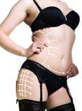 Πλαστικό ή αισθητική χειρουργική, cellulite διόρθωση, άνθρωποι και bodycare έννοια θηλυκός γάιδαρος στα εσώρουχα με τις γραμμές Στοκ Εικόνα