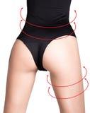 Πλαστικό ή αισθητική χειρουργική, cellulite διόρθωση, άνθρωποι και bodycare έννοια θηλυκός γάιδαρος στα εσώρουχα με τις γραμμές Στοκ Φωτογραφία
