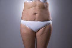 Πλαδαρή κοιλιά γυναικών ` s με τα σημάδια τεντωμάτων Στοκ Εικόνες