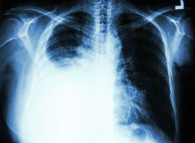 Πλευρική διάχυση λόγω του καρκίνου του πνεύμονα στοκ εικόνες με δικαίωμα ελεύθερης χρήσης