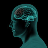 Πλευρική των ακτίνων X άποψη ανίχνευσης του ανθρώπινων κεφαλιού και του εγκεφάλου Στοκ φωτογραφία με δικαίωμα ελεύθερης χρήσης