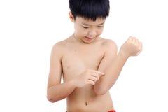 Πληγή αγοριών στοκ εικόνα με δικαίωμα ελεύθερης χρήσης