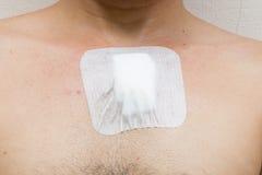 Πληγή από τη χειρουργική επέμβαση στο στήθος Στοκ φωτογραφία με δικαίωμα ελεύθερης χρήσης