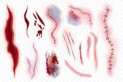 Ρεαλιστικός διανυσματικός χειρουργικός βελονιές, σημάδια, μώλωπας και σύνολο σφαγής που απομονώνεται στο άλφα transperant υπόβαθρ ελεύθερη απεικόνιση δικαιώματος