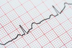 Ρυθμός καρδιών κόλπων σε χαρτί αρχείων ηλεκτροκαρδιογραφημάτων που παρουσιάζει κανονική καρδιά Στοκ εικόνα με δικαίωμα ελεύθερης χρήσης