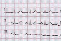 Ρυθμός καρδιών κόλπων σε χαρτί αρχείων ηλεκτροκαρδιογραφημάτων που παρουσιάζει κανονική καρδιά Στοκ Εικόνες