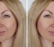 Ρυτίδα κοριτσιών προσώπου πριν και μετά από τις καλλυντικές διαδικασίες διορθώσεων στοκ εικόνες