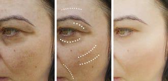 Ρυτίδες γυναικών πριν και μετά από τα αποτελέσματα που ανυψώνουν τις διαδικασίες θεραπείας στοκ φωτογραφία με δικαίωμα ελεύθερης χρήσης