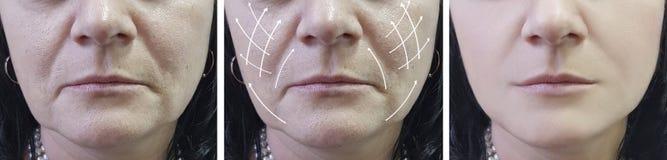 Ρυτίδες γυναικών στον ανελκυστήρα προσώπου πριν και μετά από cosmetology τις διαδικασίες, βέλος στοκ φωτογραφίες με δικαίωμα ελεύθερης χρήσης