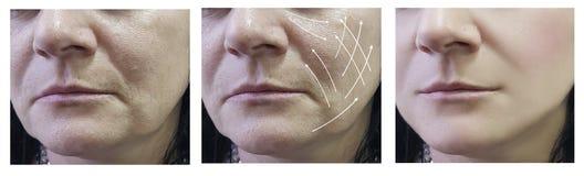 Ρυτίδες γυναικών στον ανελκυστήρα προσώπου πριν και μετά από cosmetology τις διαδικασίες, arrowresults στοκ φωτογραφίες με δικαίωμα ελεύθερης χρήσης
