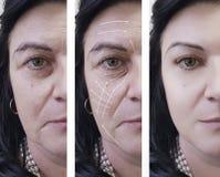 Ρυτίδες γυναικών στο beautician ανελκυστήρων προσώπου πριν και μετά από cosmetology τις διαδικασίες, arrowresults στοκ εικόνες