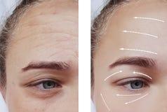 Ρυτίδες προσώπου πριν μετά από cosmetology τη διαφορά που ανυψώνει την υπομονετική θεραπεία βελών διαδικασιών στοκ εικόνα με δικαίωμα ελεύθερης χρήσης