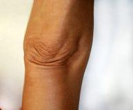 Ρυτίδες και πτυχές στον αγκώνα του Παλαιός ζαρωμένος αγκώνας στοκ φωτογραφία με δικαίωμα ελεύθερης χρήσης