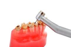 Σαγόνι και οδοντικό handpiece στοκ φωτογραφία με δικαίωμα ελεύθερης χρήσης