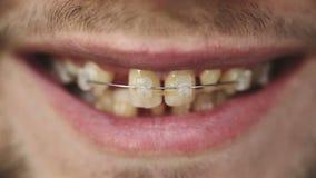 ΣΕ ΑΡΓΗ ΚΊΝΗΣΗ: Κλείστε επάνω ενός όμορφου αρσενικού προσώπου Άτομο που παρουσιάζει στηρίγματα στα δόντια φιλμ μικρού μήκους