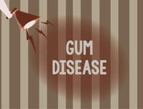 Σημάδι κειμένων που παρουσιάζει ασθένεια γόμμας Εννοιολογική ανάφλεξη φωτογραφιών της μαλακής ουλίτιδας Periodontitis ιστού απεικόνιση αποθεμάτων