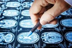 Σημείο γιατρών μια εικόνα μιας ροής της δουλειάς εγκεφάλου MRI στα διαγνωστικά hos Στοκ φωτογραφίες με δικαίωμα ελεύθερης χρήσης