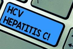 Σημείωση γραψίματος που παρουσιάζει ηπατίτιδα Γ Hcv Ασθένεια ήπαρ επίδειξης επιχειρησιακών φωτογραφιών που προκαλείται από μια σο διανυσματική απεικόνιση