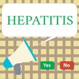Σημείωση γραψίματος που παρουσιάζει ηπατίτιδα Επιχειρησιακή φωτογραφία που επιδεικνύει την ασθένεια Α που περιγράφεται από την αν ελεύθερη απεικόνιση δικαιώματος