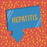 Σημείωση γραψίματος που παρουσιάζει ηπατίτιδα Επιχειρησιακή φωτογραφία που επιδεικνύει την ασθένεια Α που περιγράφεται από την αν απεικόνιση αποθεμάτων