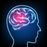 Σκιαγραφία ενός ανθρώπινου κεφαλιού Ασθένεια ημικρανίας Νευρικό syst εγκεφάλου Στοκ φωτογραφία με δικαίωμα ελεύθερης χρήσης