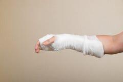 Σπασμένο χέρι με τον επίδεσμο στοκ φωτογραφίες με δικαίωμα ελεύθερης χρήσης