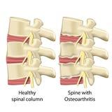 Σπονδυλική στήλη με την οστεοαρθρίτιδα, ιατρική διανυσματική απεικόνιση νωτιαίων στηλών που απομονώνεται στο άσπρο υπόβαθρο διανυσματική απεικόνιση